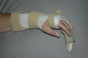 Post Surgery Update Brace-Splint, Rehab