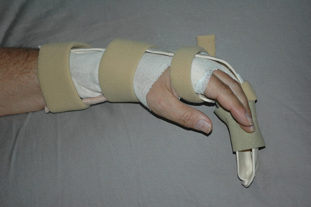 Brace Splint for Hand Surgery Rehab 0612